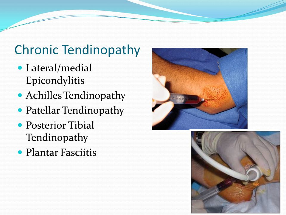 Chronic Tendinopathy Lateral/medial Epicondylitis