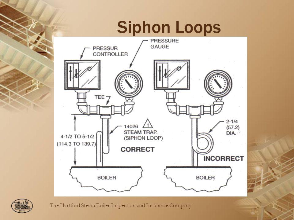 Siphon Loops