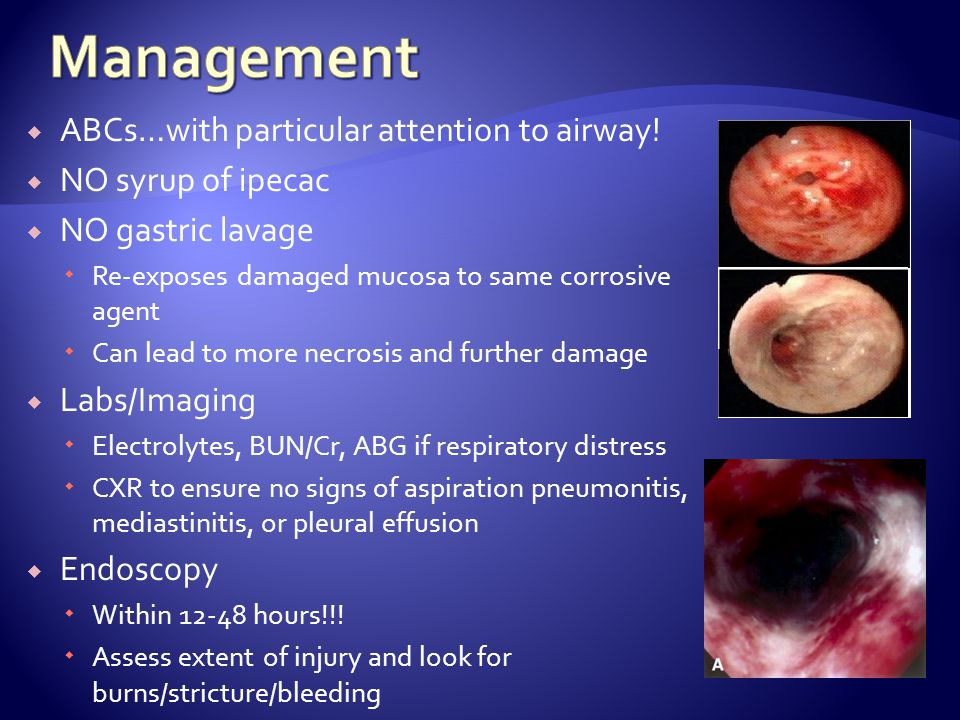 Management ABCs…with particular attention to airway!