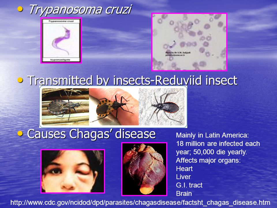 Transmitted by insects-Reduviid insect