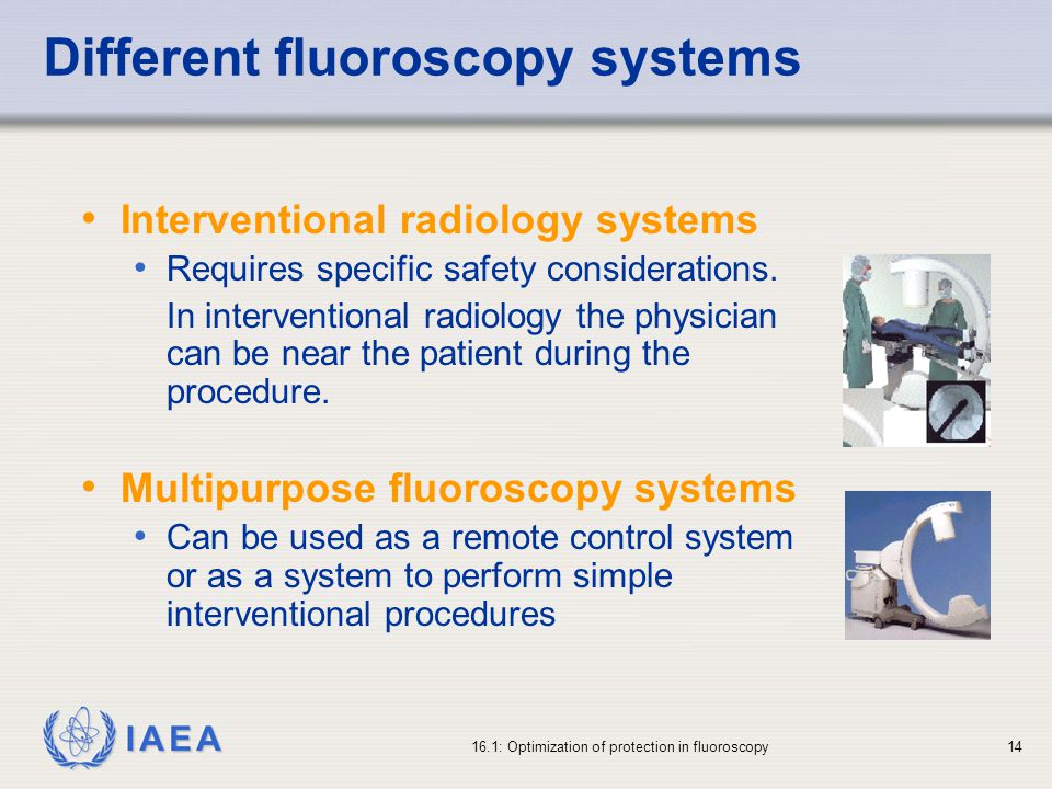 Different fluoroscopy systems