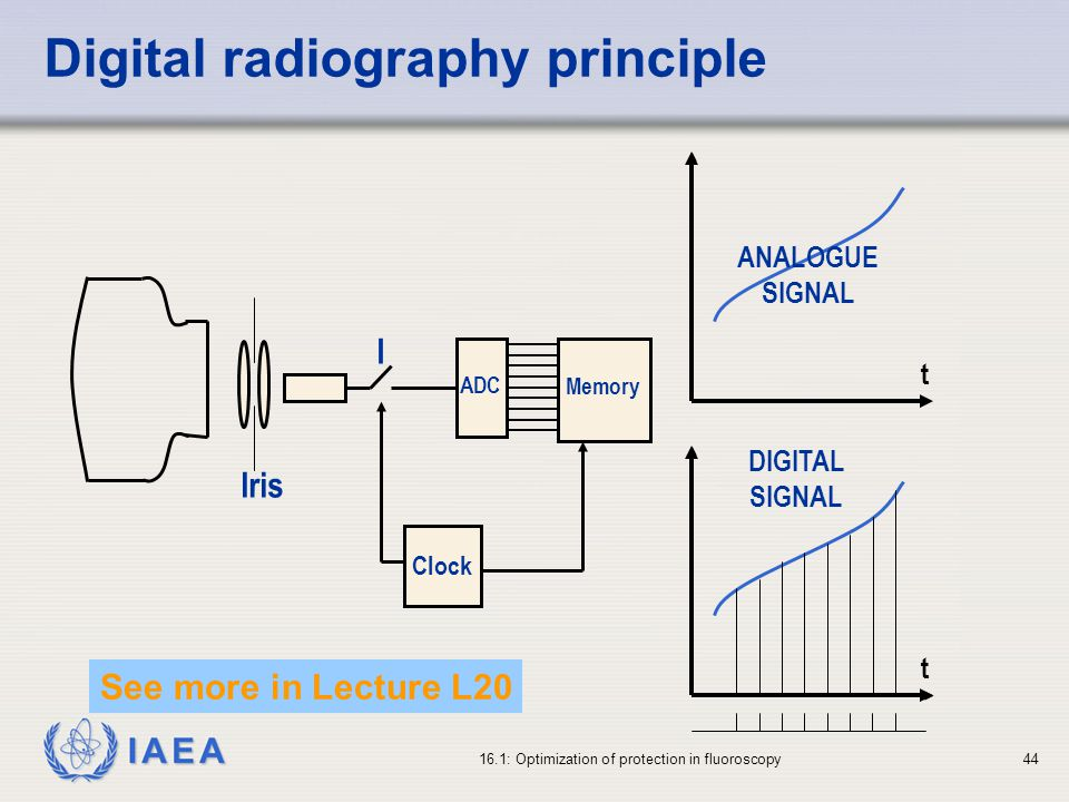 Digital radiography principle