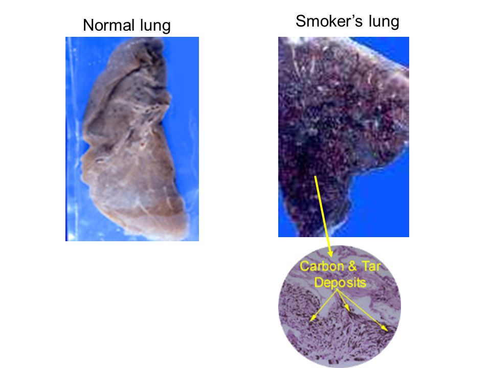 Smoker's lung Normal lung