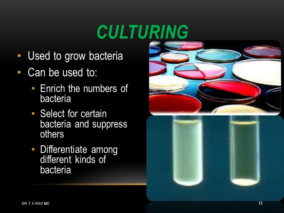 Culturing Used to grow bacteria Can be used to: