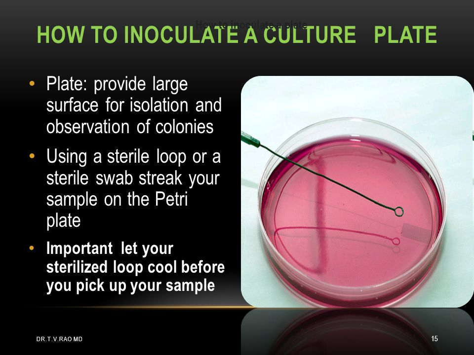 How to inoculate a Culture plate