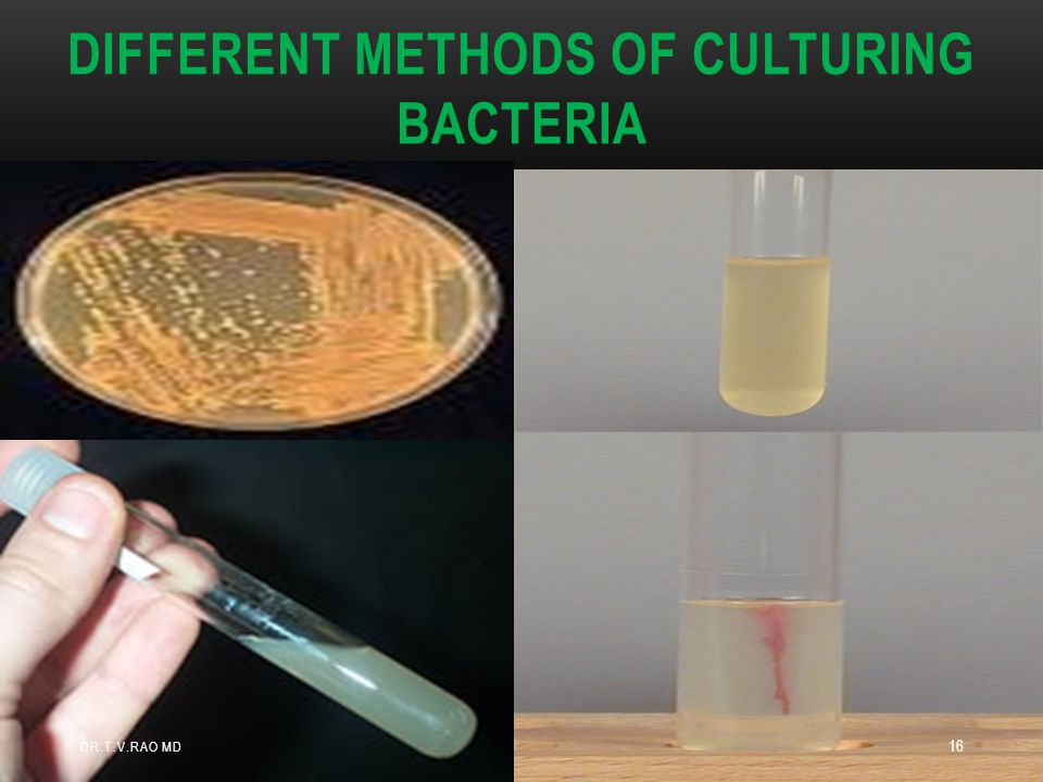 Different methods of culturing Bacteria