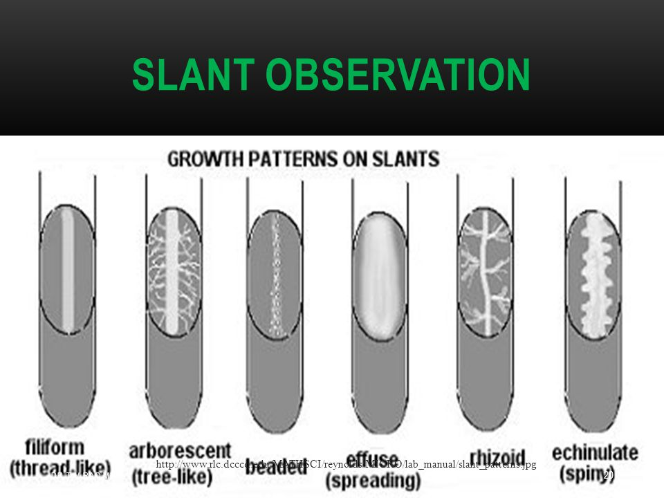 Slant observation http://www.rlc.dcccd.edu/MATHSCI/reynolds/MICRO/lab_manual/slant_patterns.jpg.