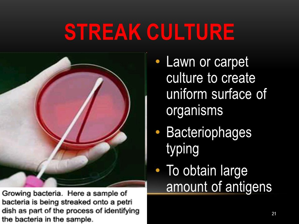 Streak Culture Lawn or carpet culture to create uniform surface of organisms. Bacteriophages typing.