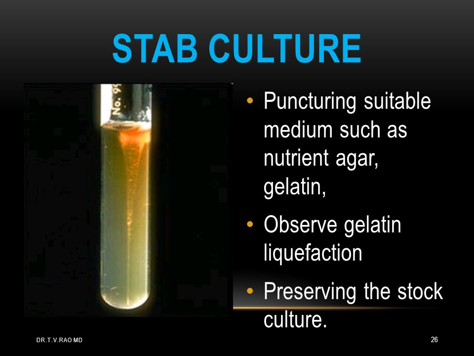 Stab Culture Puncturing suitable medium such as nutrient agar, gelatin, Observe gelatin liquefaction.