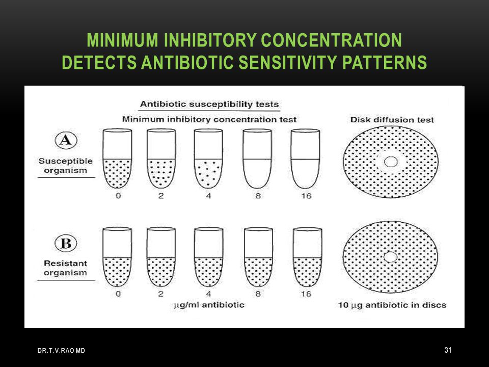 Minimum Inhibitory concentration detects antibiotic sensitivity patterns