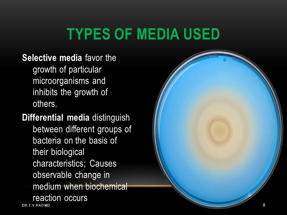 Types of Media Used Selective media favor the growth of particular microorganisms and inhibits the growth of others.
