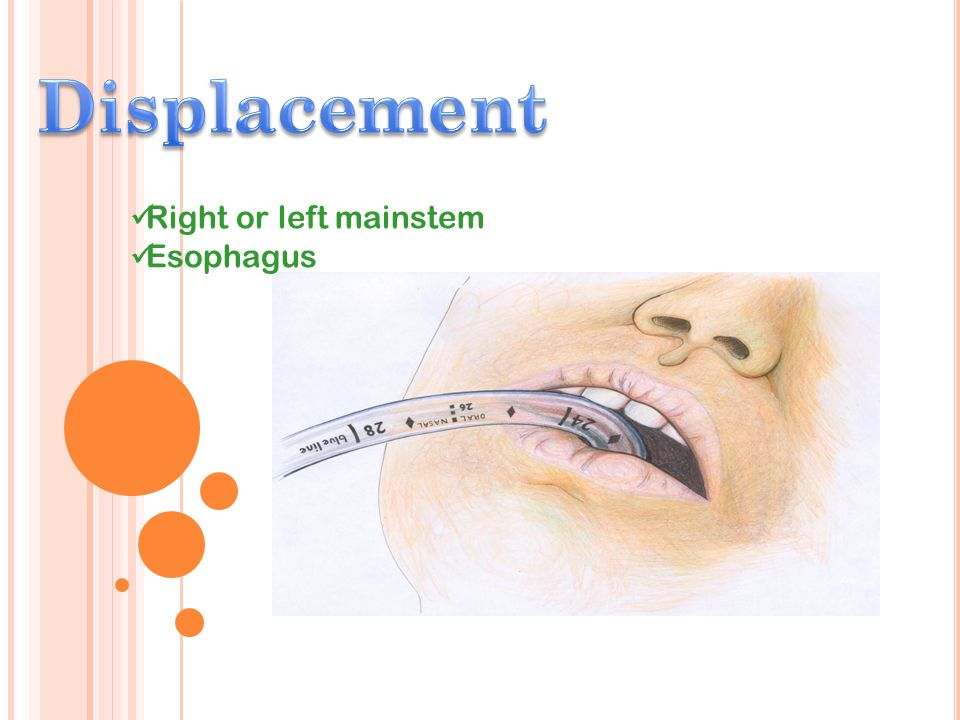 Displacement Right or left mainstem Esophagus