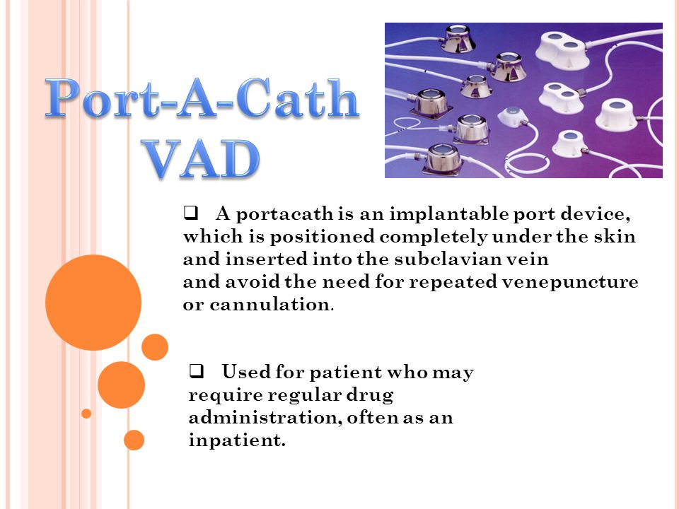 Port-A-Cath VAD.