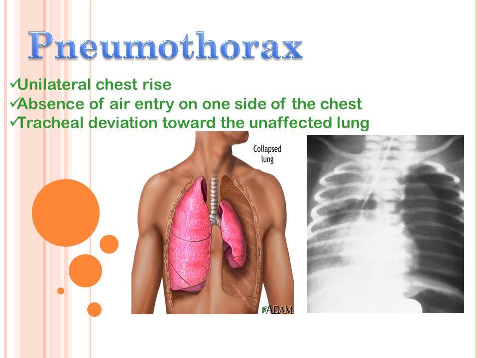 Pneumothorax Unilateral chest rise