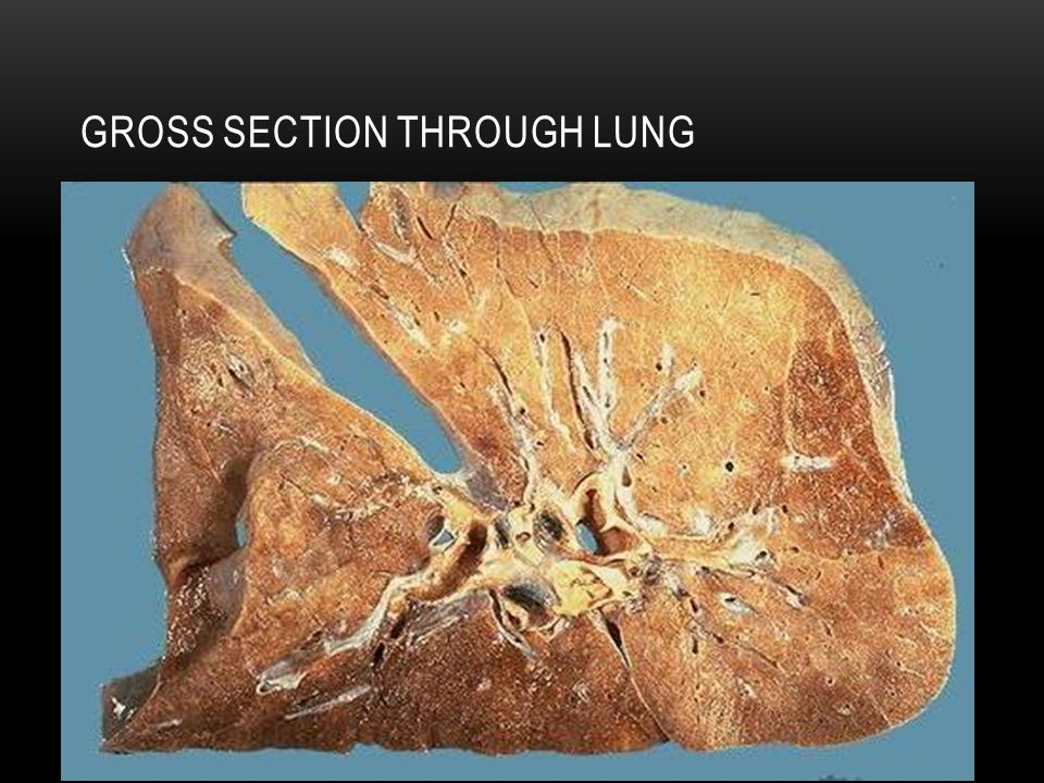 Gross Section Through Lung