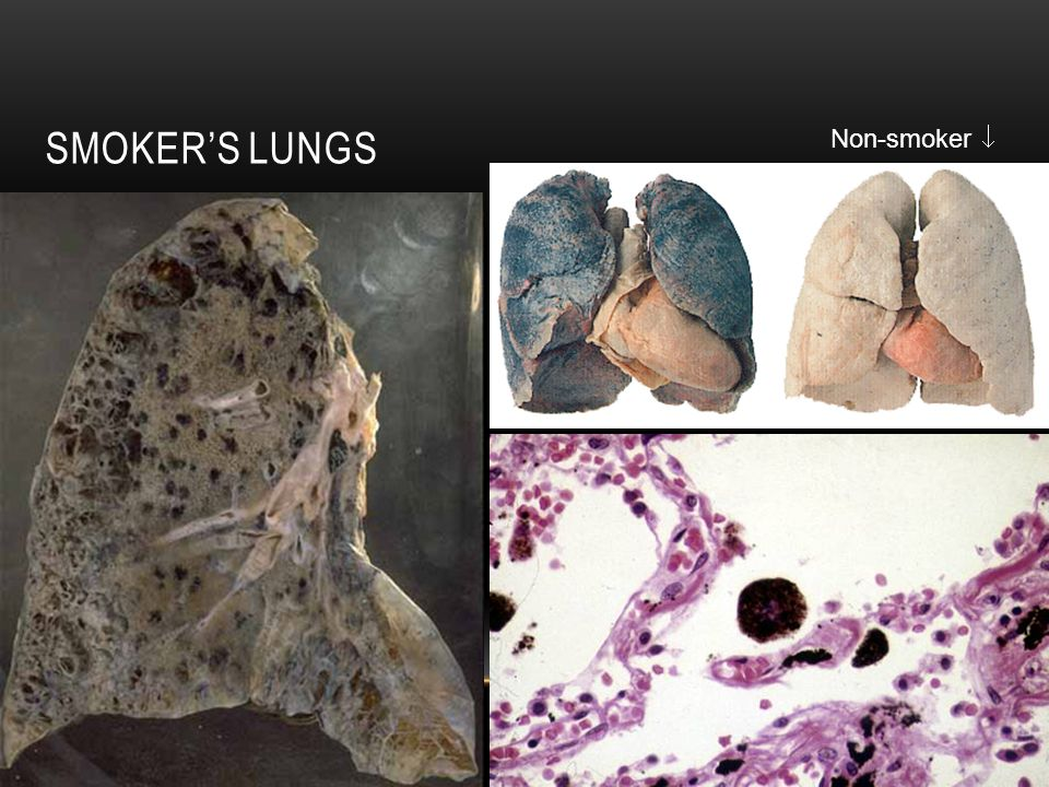 Smoker's Lungs Non-smoker 