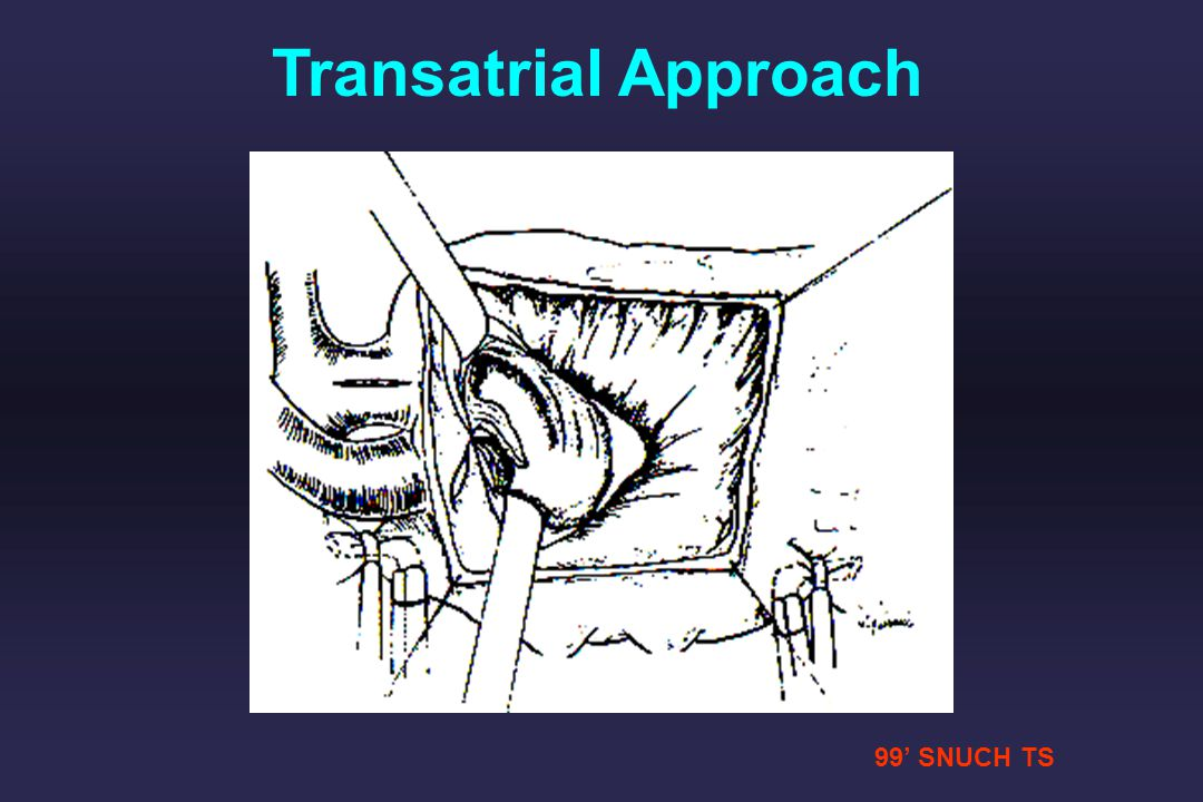Transatrial Approach 99' SNUCH TS