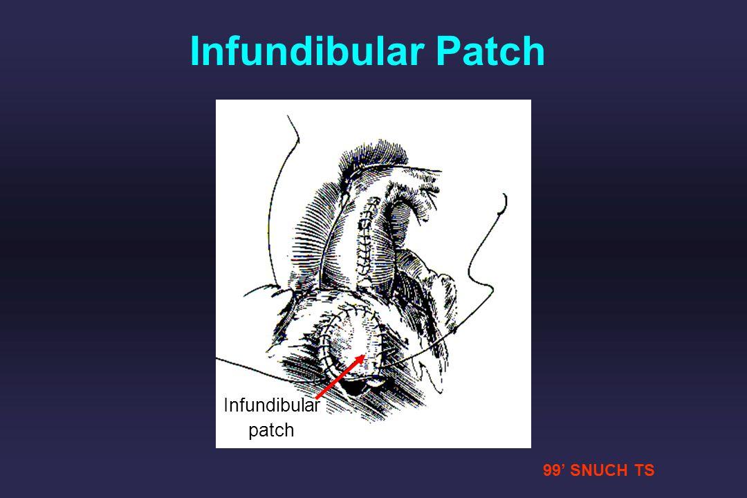 Infundibular Patch Infundibular patch 99' SNUCH TS