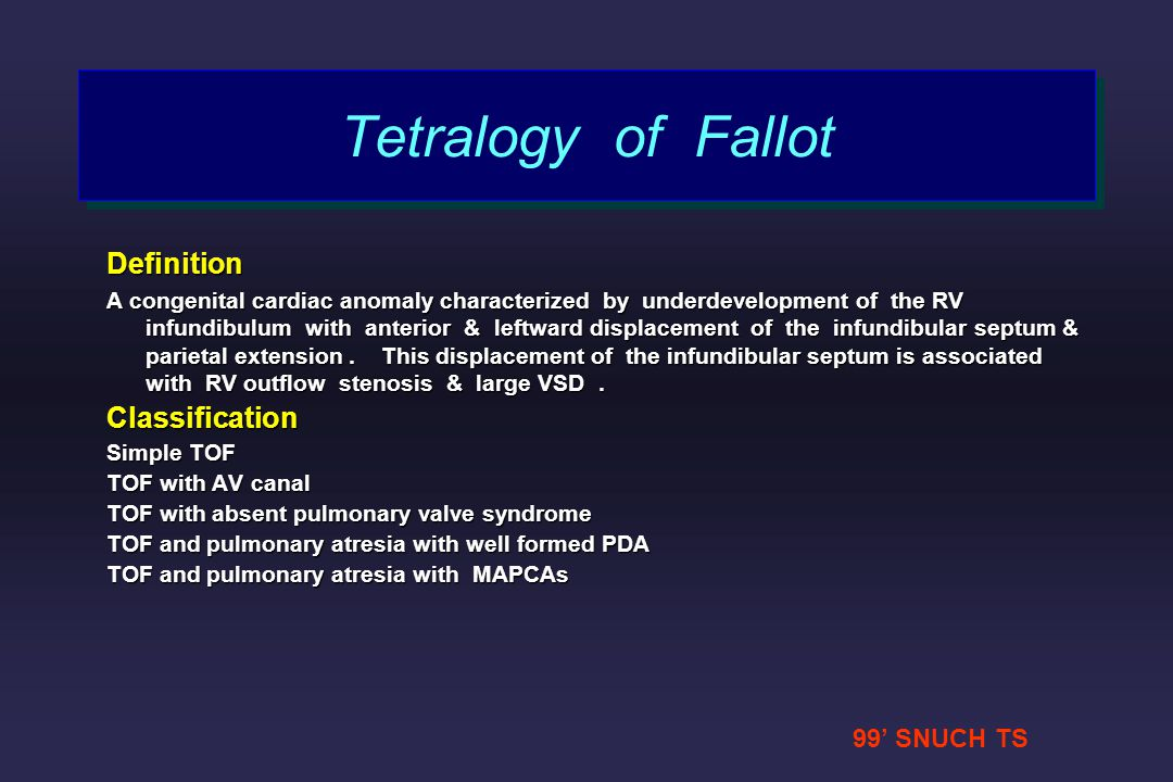 Tetralogy of Fallot Definition Classification 99' SNUCH TS