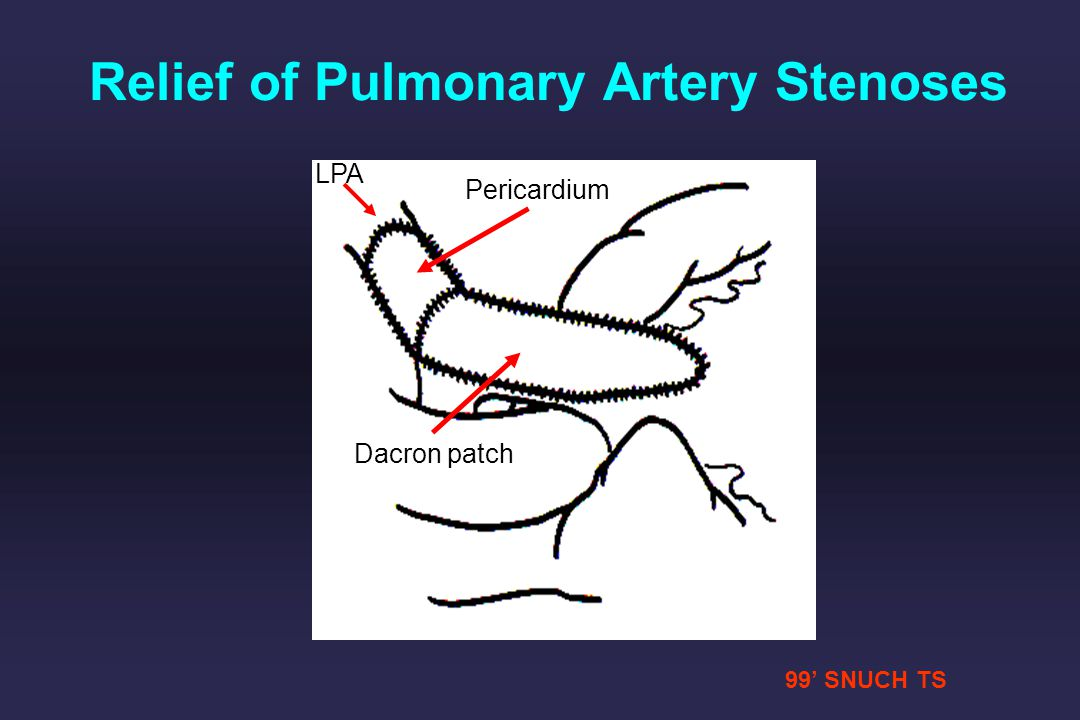 Relief of Pulmonary Artery Stenoses