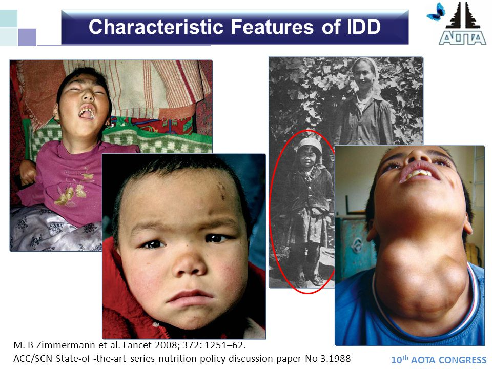 Characteristic Features of IDD