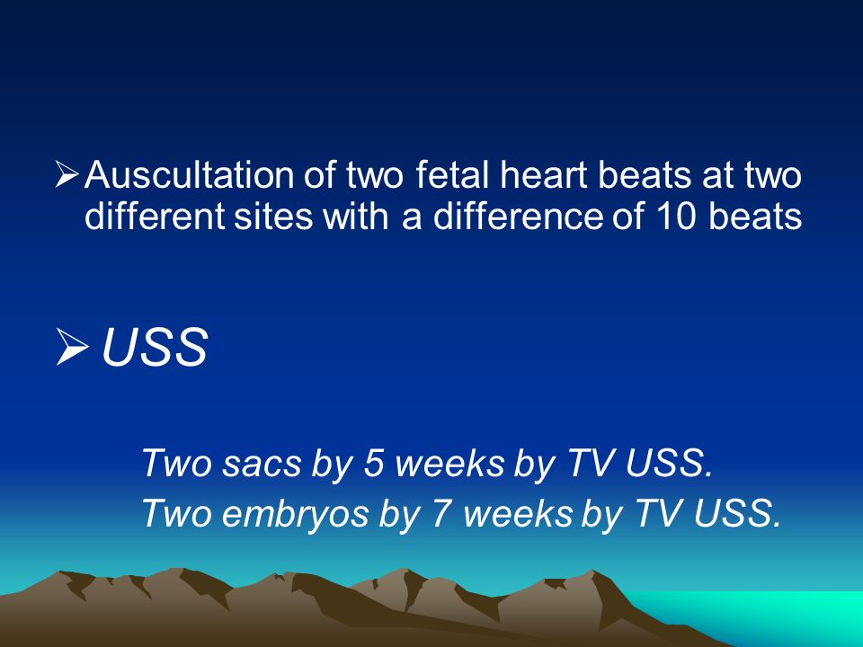 Auscultation of two fetal heart beats at two different sites with a difference of 10 beats