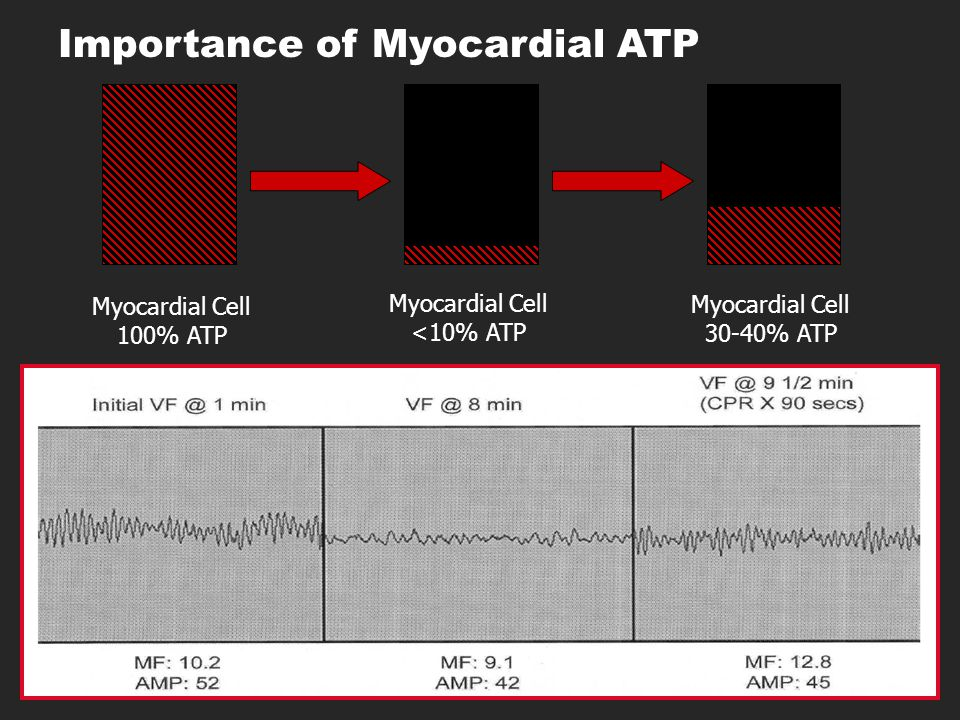 Importance of Myocardial ATP