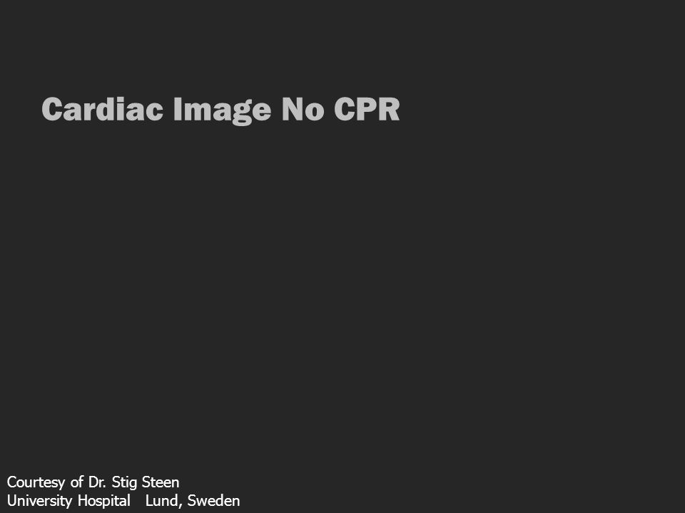 Cardiac Image No CPR Courtesy of Dr. Stig Steen