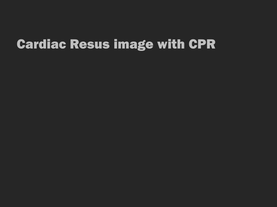 Cardiac Resus image with CPR