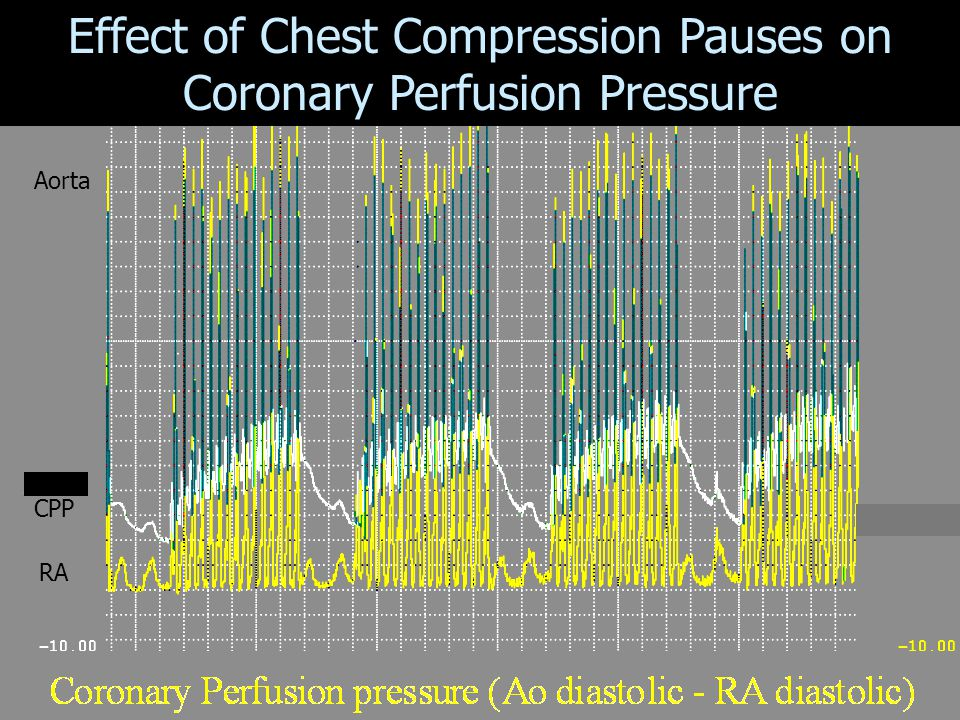 Effect of Chest Compression Pauses on Coronary Perfusion Pressure