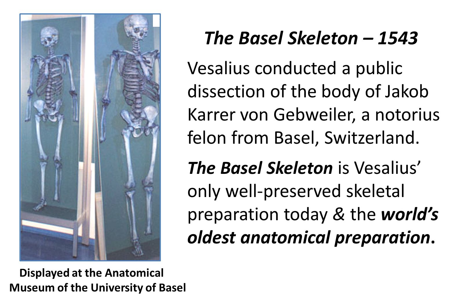 The Basel Skeleton – 1543 Vesalius conducted a public dissection of the body of Jakob Karrer von Gebweiler, a notorius felon from Basel, Switzerland.