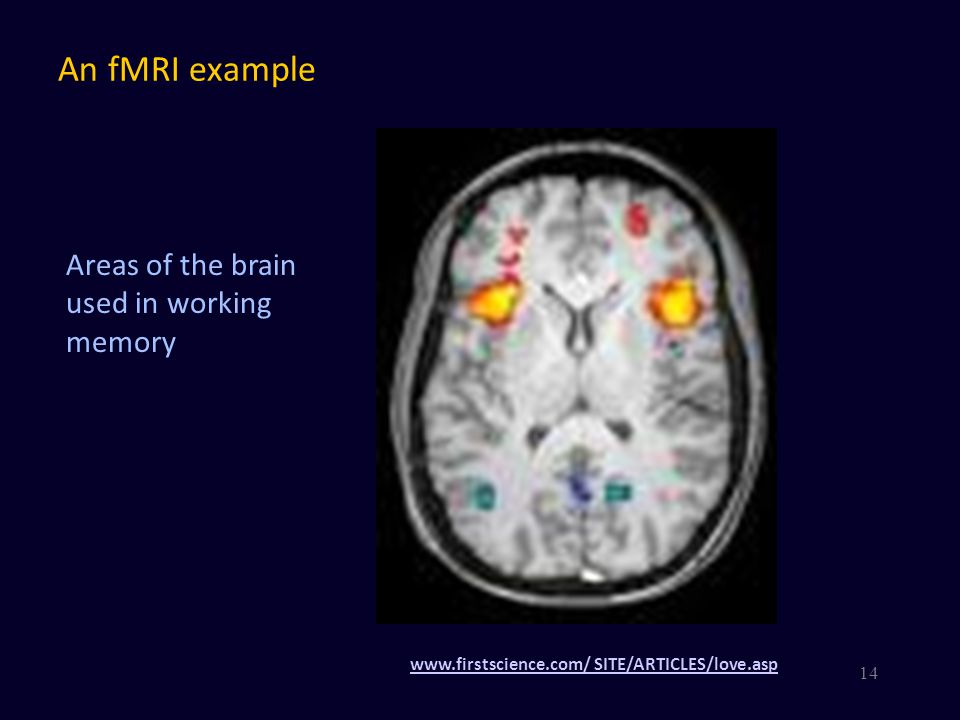 An fMRI example Areas of the brain used in working memory