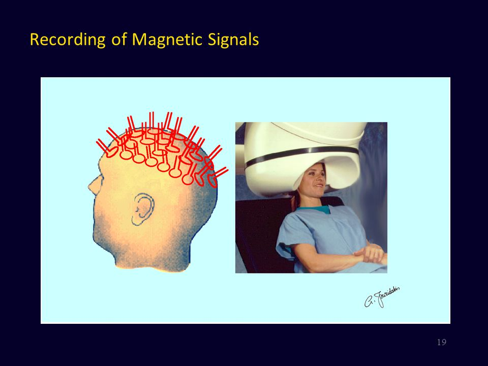 Recording of Magnetic Signals