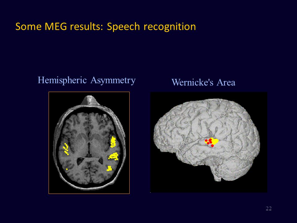 Some MEG results: Speech recognition