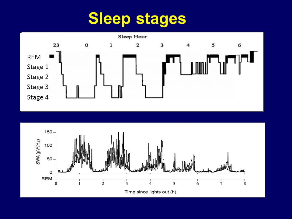 Sleep stages REM Stage 1 Stage 2 Stage 3 Stage 4