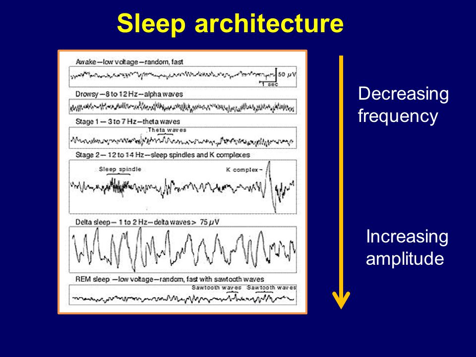 Sleep architecture Decreasing frequency Increasing amplitude