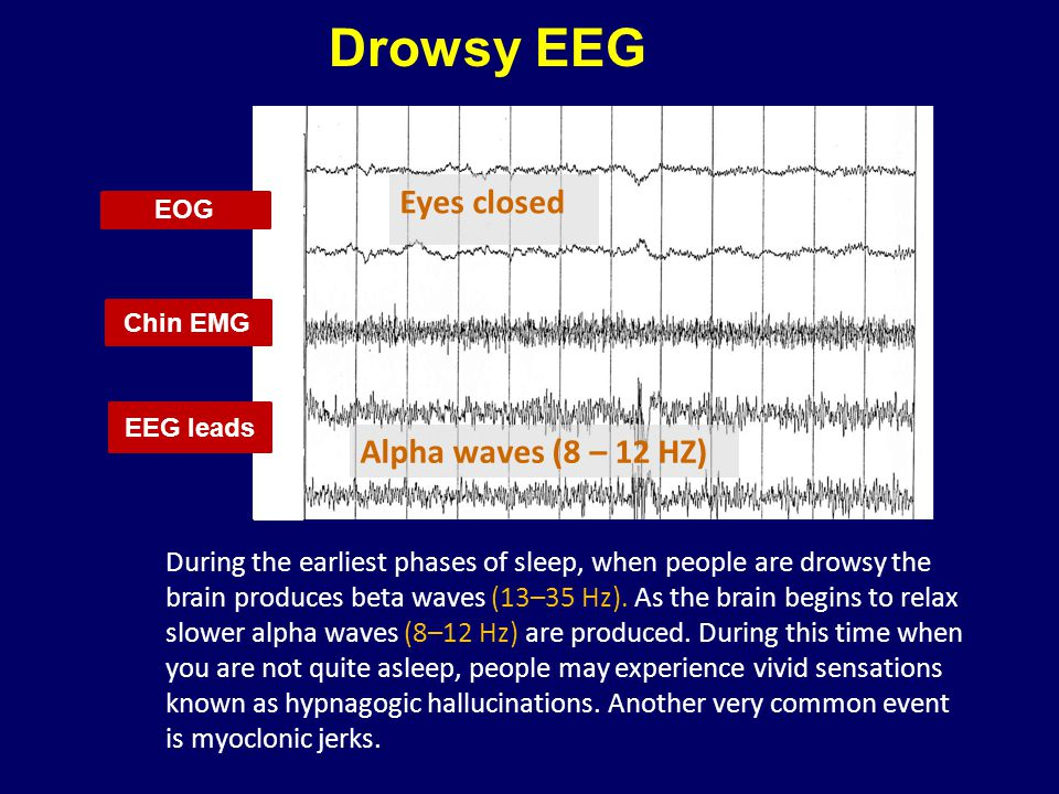 Drowsy EEG Eyes closed Eyes open Beta waves (12-30 HZ)