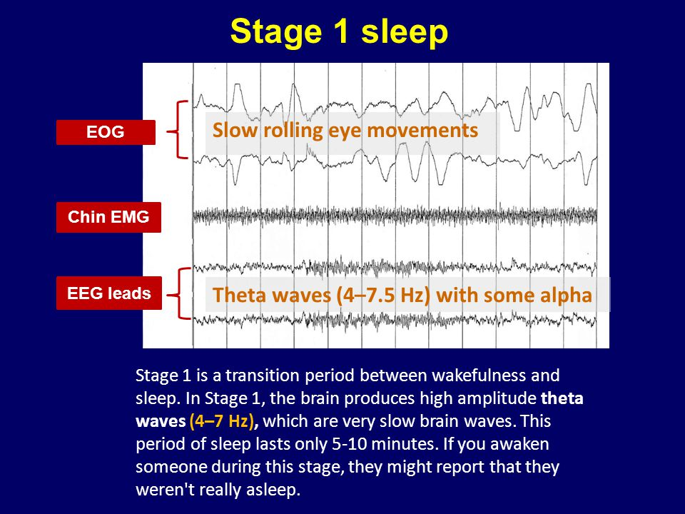 Stage 1 sleep Slow rolling eye movements
