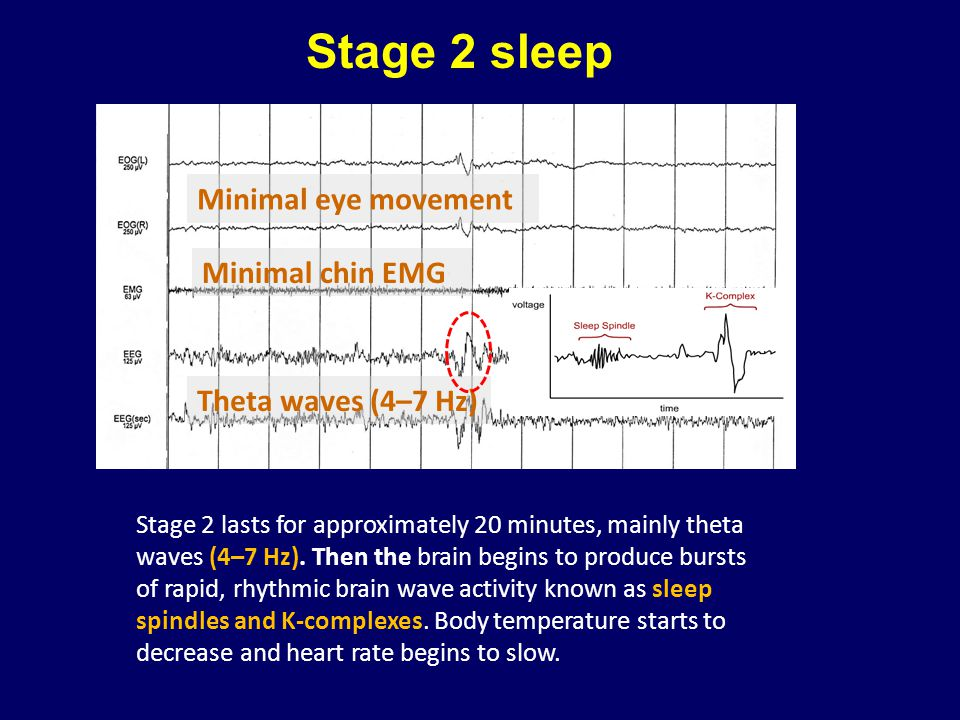 Stage 2 sleep Minimal eye movement Minimal chin EMG