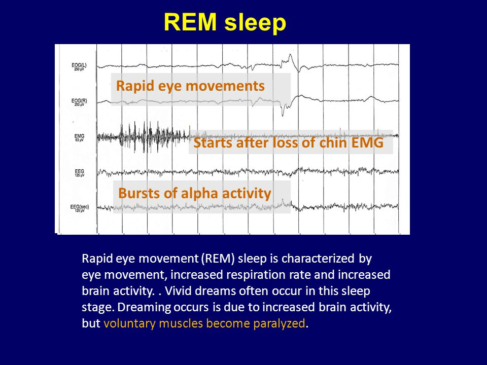 REM sleep Rapid eye movements Starts after loss of chin EMG