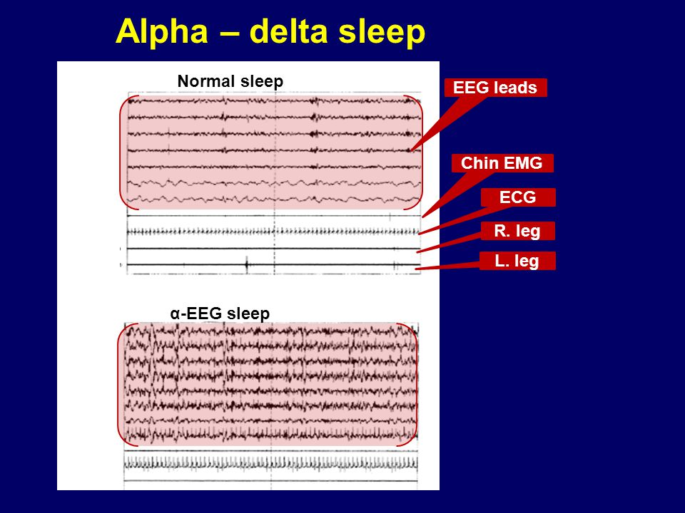 Alpha – delta sleep Normal sleep EEG leads Chin EMG ECG R. leg L. leg