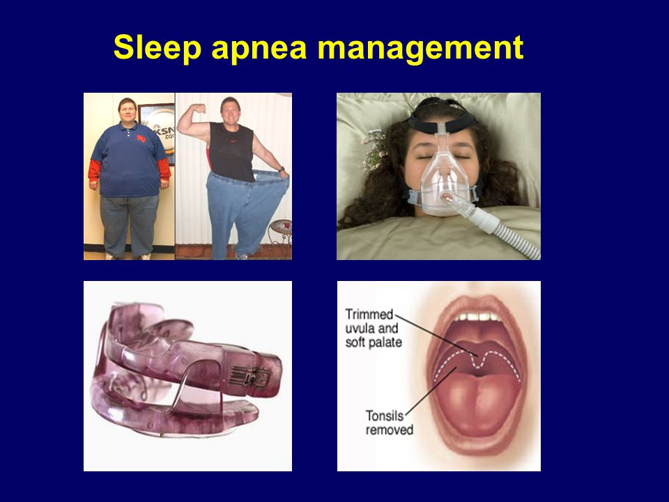 Sleep apnea management