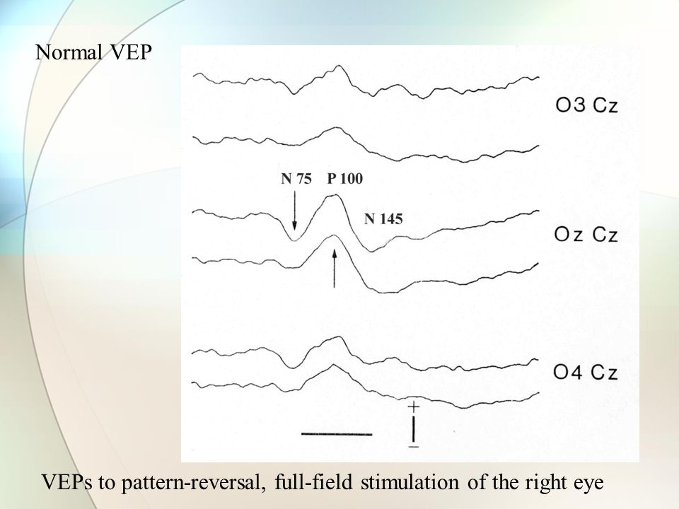 Normal VEP VEPs to pattern-reversal, full-field stimulation of the right eye