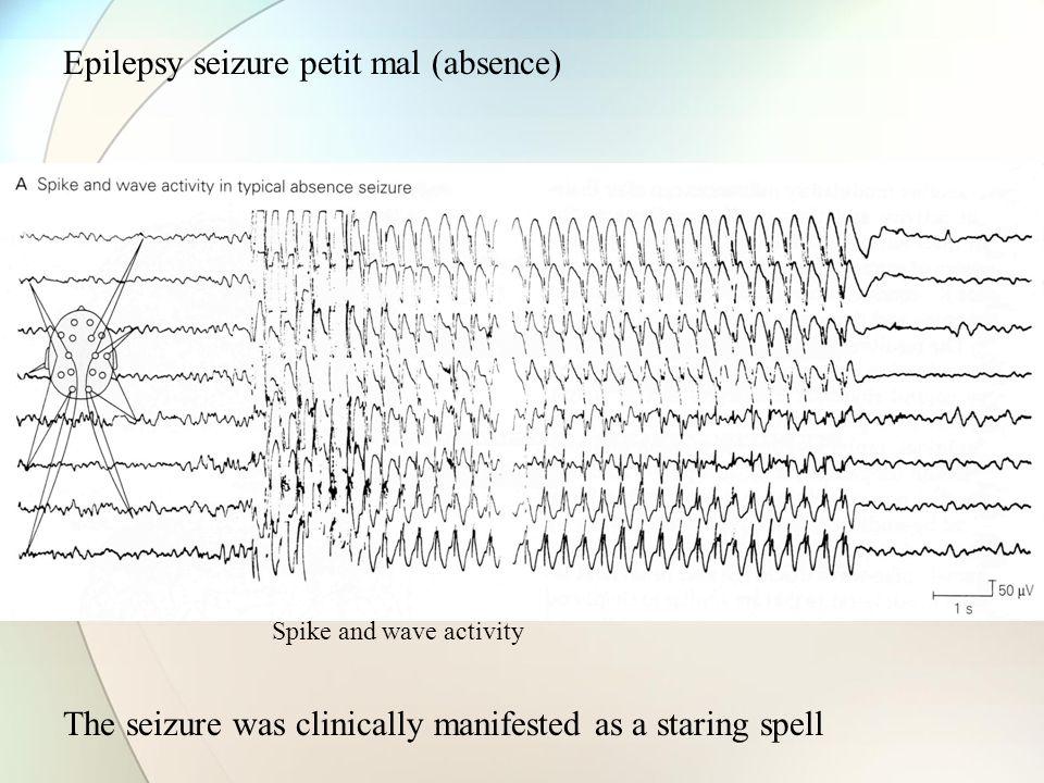 Epilepsy seizure petit mal (absence)