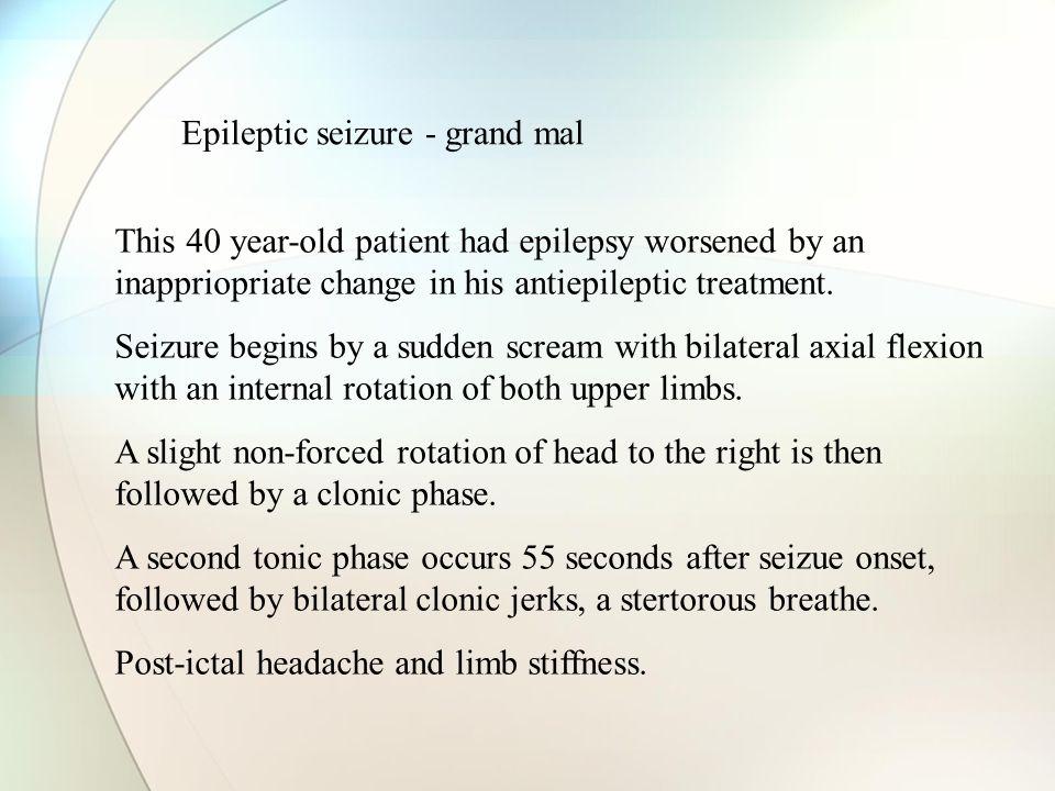 Epileptic seizure - grand mal