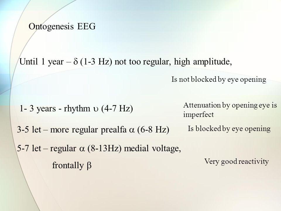 Until 1 year –  (1-3 Hz) not too regular, high amplitude,