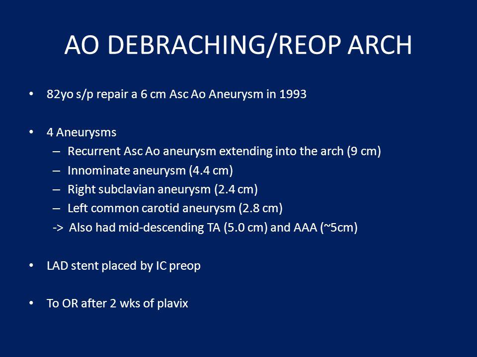 AO DEBRACHING/REOP ARCH