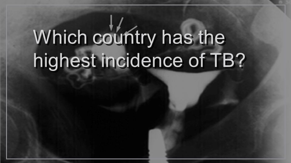 Which country has the highest incidence of TB