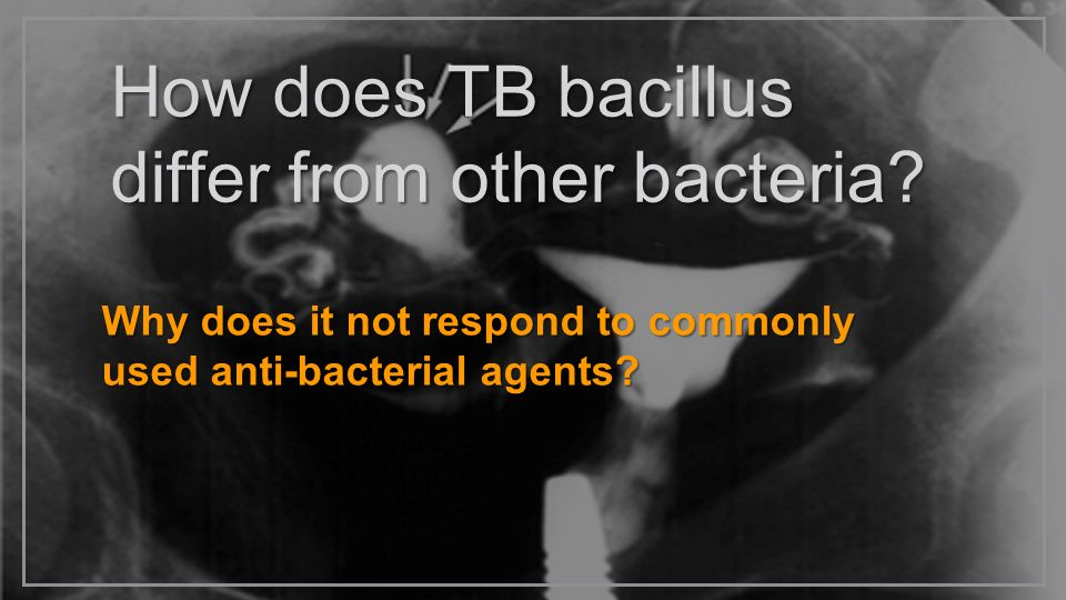 How does TB bacillus differ from other bacteria