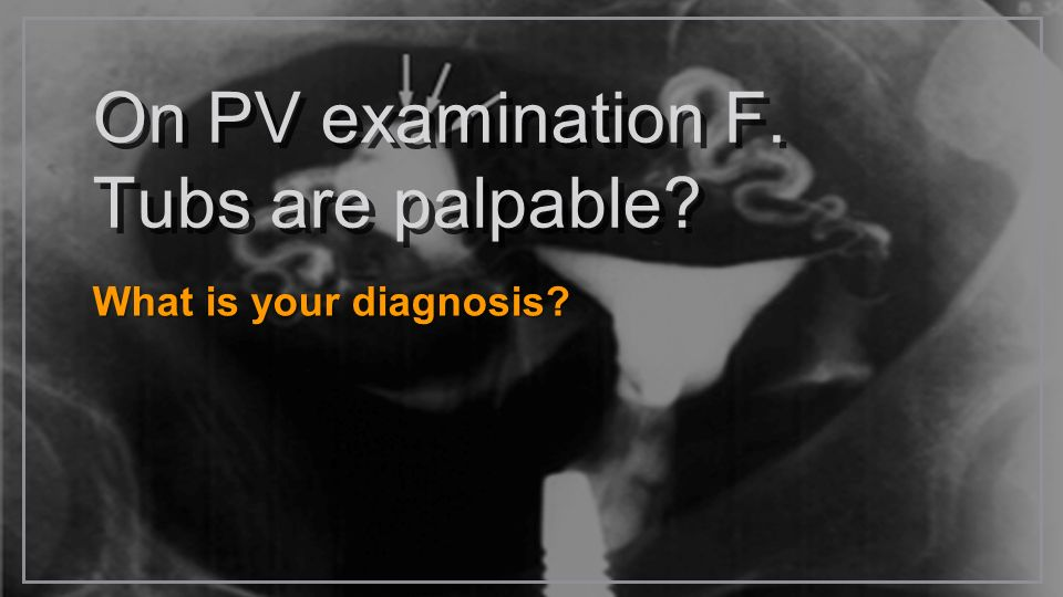 On PV examination F. Tubs are palpable